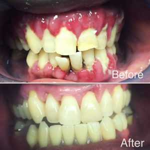 Deep Periodontal Cleaning